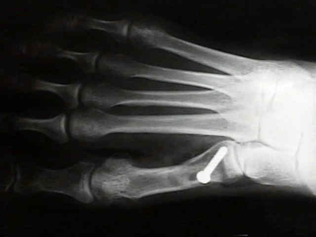 A boka arthrosisának kezelése az otthonban - Láb