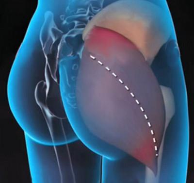 a csípőízület súlyos fájdalmának oka