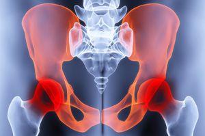 a csípőízület ízületi gyulladásának oka)
