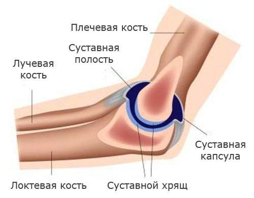 a könyökízületben a kar nagyon fáj)