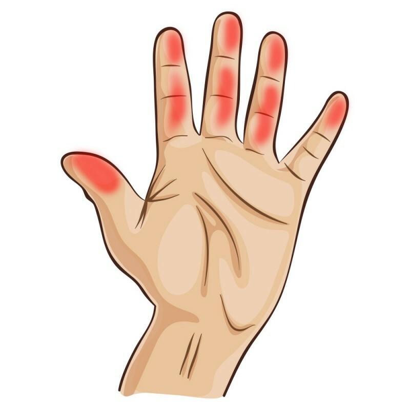 a kéz ujjai nagyon fájnak ízületi mobilitás gyógyszerei