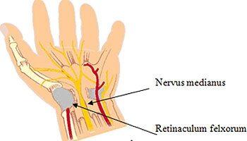 kéztő alagút szindróma műtét nélkül térdízület csontritkulása hogyan lehet kezelni