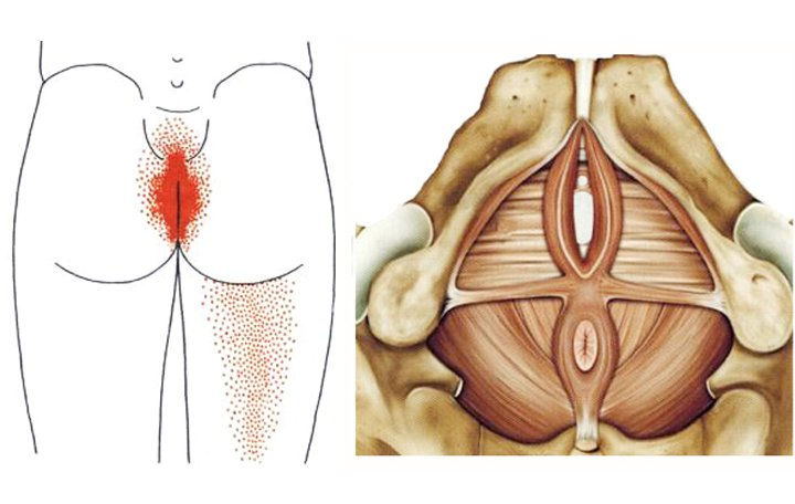 akut fájdalom az izmokban és a lábak ízületeiben