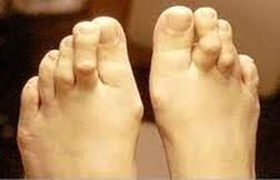fáj a második lábujj ízülete