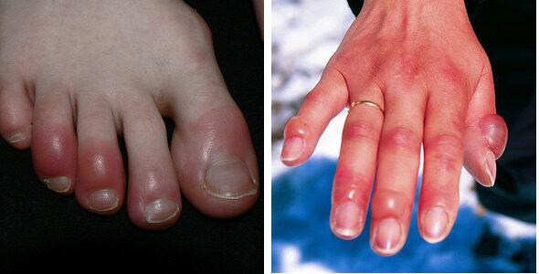 duzzadt ujjak kezelése