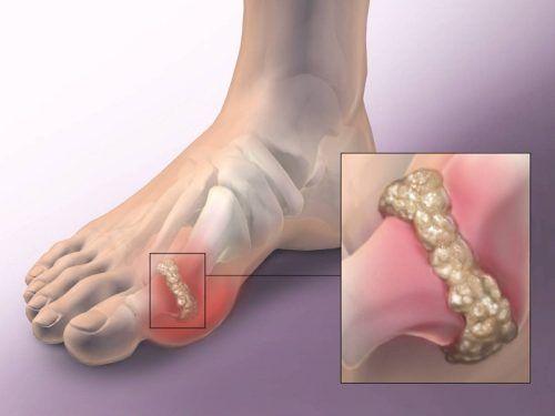 fájhatnak a térdízületek a gerinctől ízületi gyulladás az ujjkezelésen