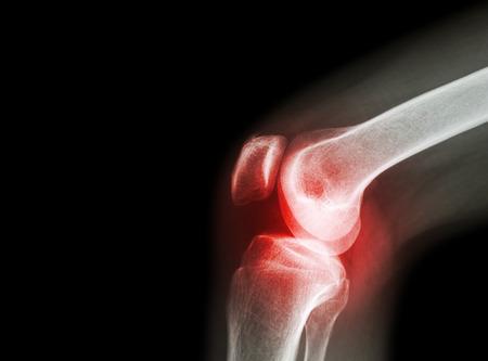 kötszer térd artrózisának kezelésére