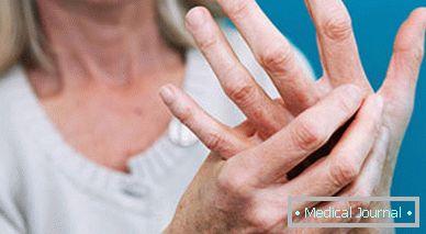 fájdalom tünete a karok és a lábak ízületeiben)