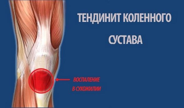 hogyan nyilvánul meg a térd artrózisa