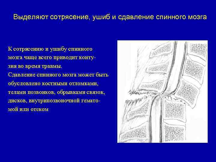 Fájdalom az alsó hátfájásban: okai és kezelése
