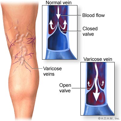 térd aneurysma kezelés