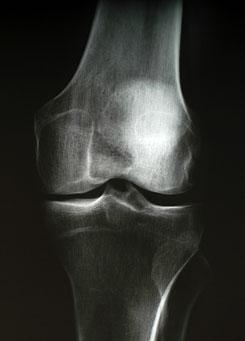 térdízületi kezelés artrózisa gyermekeknél