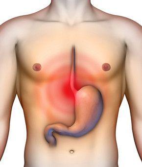Gyomorfájás – tények és tévhitek