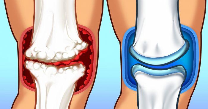 ízületi gyulladás vagy ízületi fájdalom fáj
